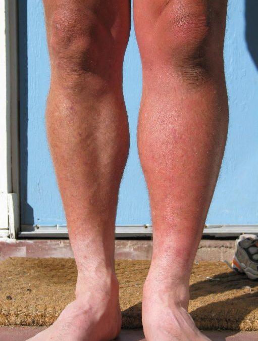 Left Leg Swelling (1)