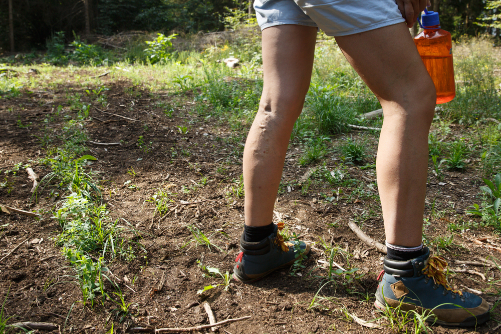 3 things about varicose veins…